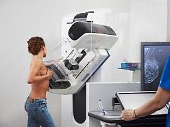 Mamogrāfija ar tomosintēzi