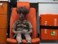 Karadarbībā ierautās Sīrijas ikdienas simbols: mazs sīriešu zēns, kurš redzams mediķu automašīnā. Bērna apģērbs ir saplēsts, un visu ķermeni klāj biezu putekļu un asiņu kārta, taču sejā nav redzamas emocijas. Zēns izglābts no sagrautas ēkas drupām Sīrijas pilsētā Alepo.