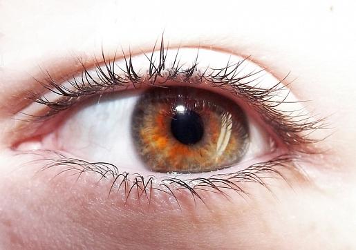 Iridociklīts: Simptomi, cēloņi, ārstēšana