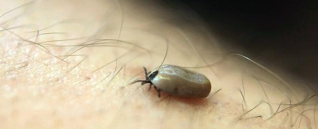 Infektoloģijas centrā vienam no pacientiem apstiprinājušās aizdomas par ērču encefalītu