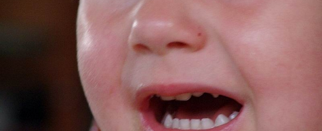 "Latgalē meitenīte gūst mutes apdegumus, mutē ieliekot ""zilos graudus"""