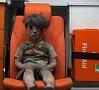 Foto: AFP/ LETA|Karadarbībā ierautās Sīrijas ikdienas simbols: mazs sīriešu zēns, kurš redzams mediķu automašīnā. Bērna apģērbs ir saplēsts, un visu ķermeni klāj biezu putekļu un asiņu kārta, taču sejā nav redzamas emocijas. Zēns izglābts no sagrautas ēkas drupām Sīrijas pilsētā Alepo.
